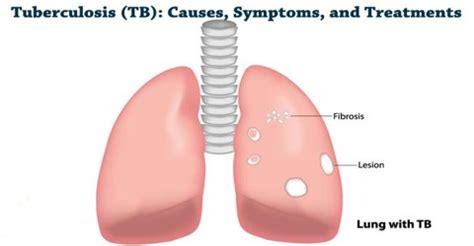 Resistant tuberculosis research paper